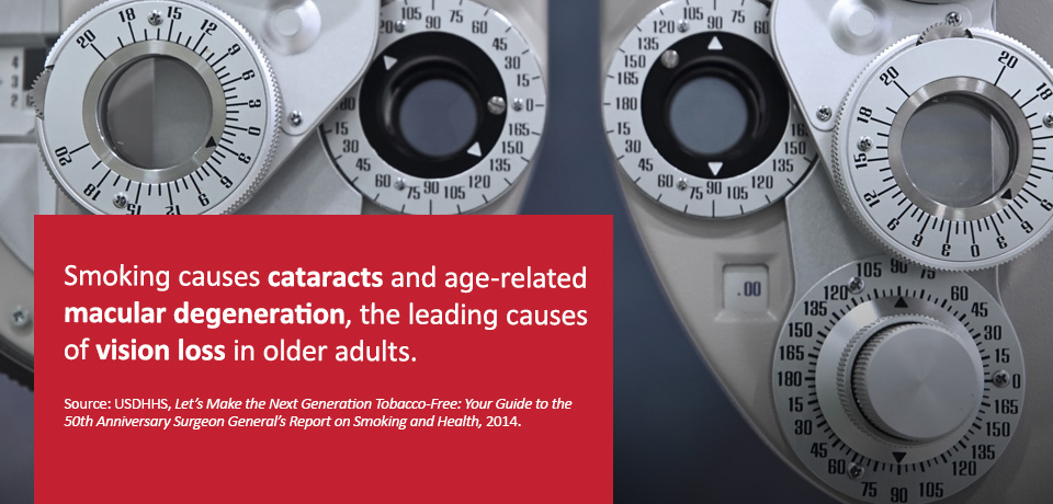 A vision-checking machine with overlay text -- Smoking causes cataracts and age-related macular degeneration the leading causes of vision-loss in older adults.